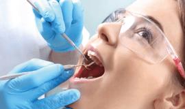 endodontik-tedavi-kanal-tedavisi-kapak